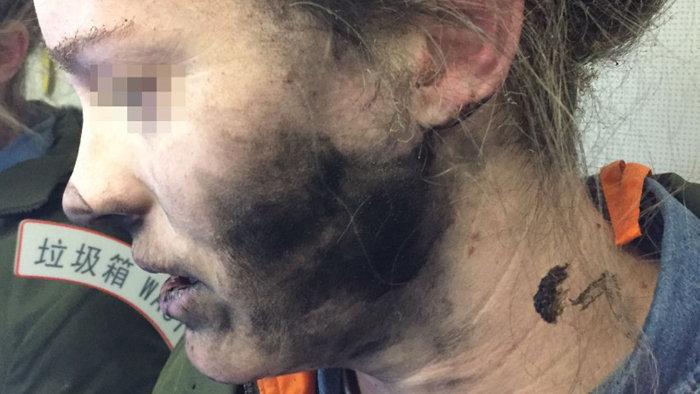 PÁNIK A REPÜLŐGÉPEN: Egy nő fülén felrobbant a fülhallgató